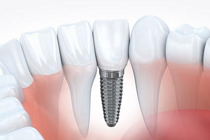 Zahnarztpraxis Dr. Brigitte Guenther Germering Implantatprothetik
