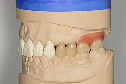 Zahnarztpraxis Dr. Brigitte Guenther Germering Prothetik