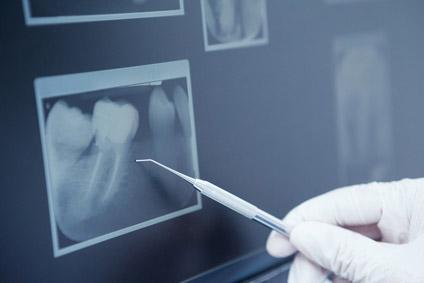 Zahnarztpraxis Dr. Brigitte Guenther Germering Paratonditisbehandlung
