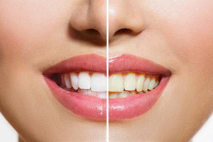 Zahnarztpraxis Dr. Brigitte Guenther Germering Bleaching